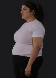 Psychological Causes for weight loss